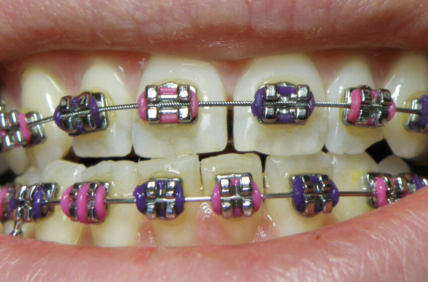 One phase versus two phases of orthodontic treatment